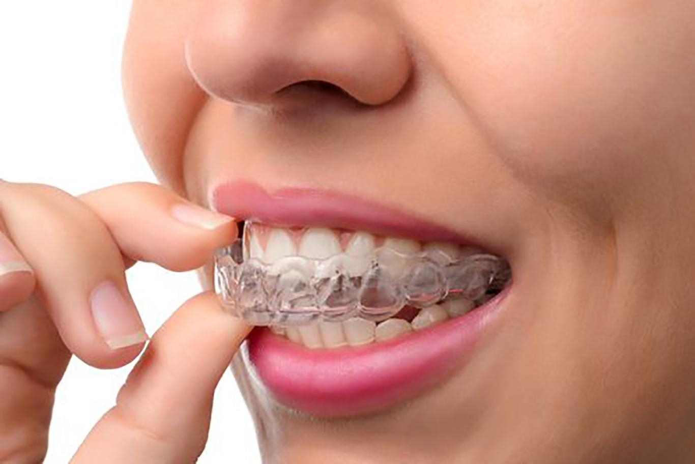 Clear aligners service of Skopek Orthodontics