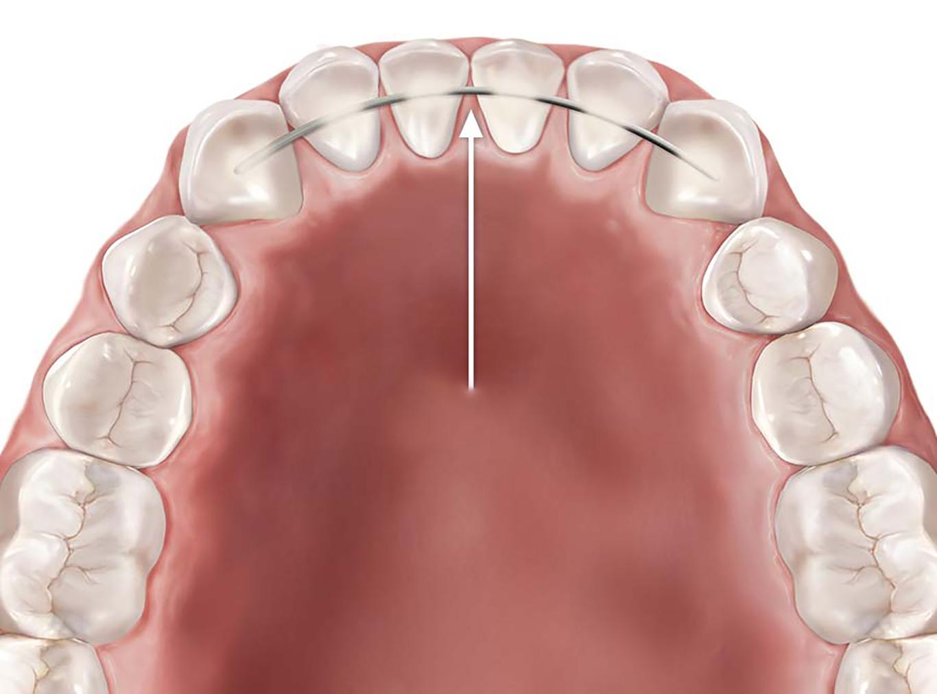 Fixed retainer service of Skopek Orthodontics