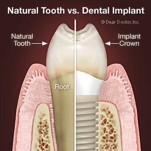 Skopek Orthodontics difference of natural tooth and an implant crown