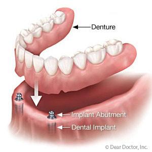 Implant overdenture of Skopek Orthodontics