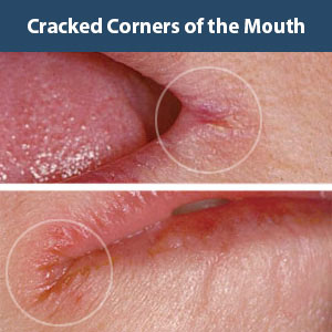Skopek Orthodontics cracked corners of the mouth