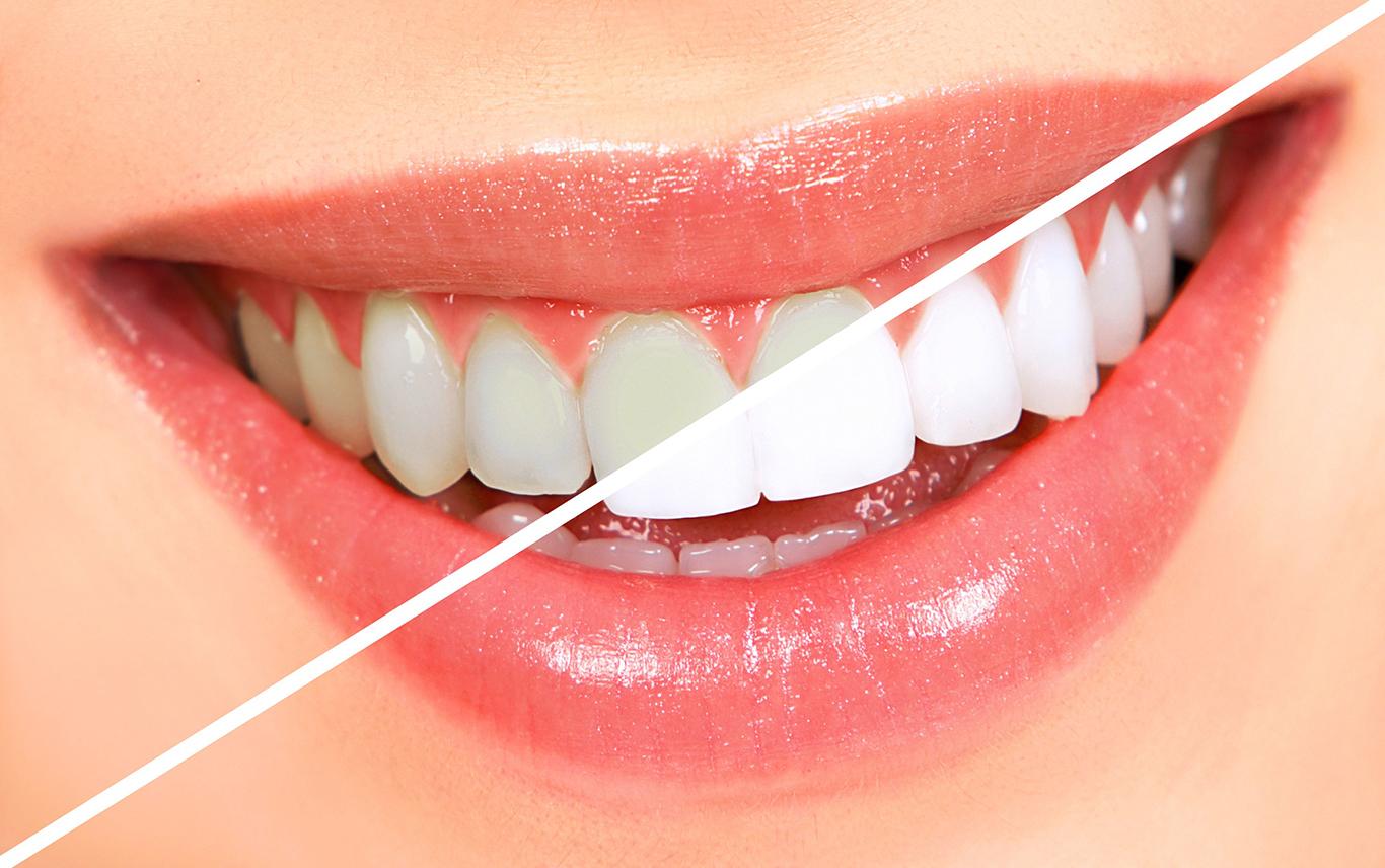 skopek orthodontics teeth whitening north barrington il